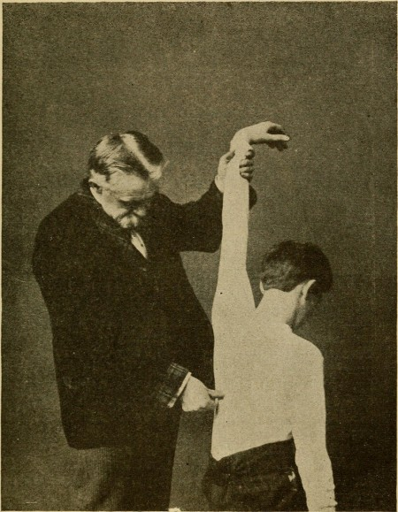 Old photograph of a doctor checking a boy for scoliosis.